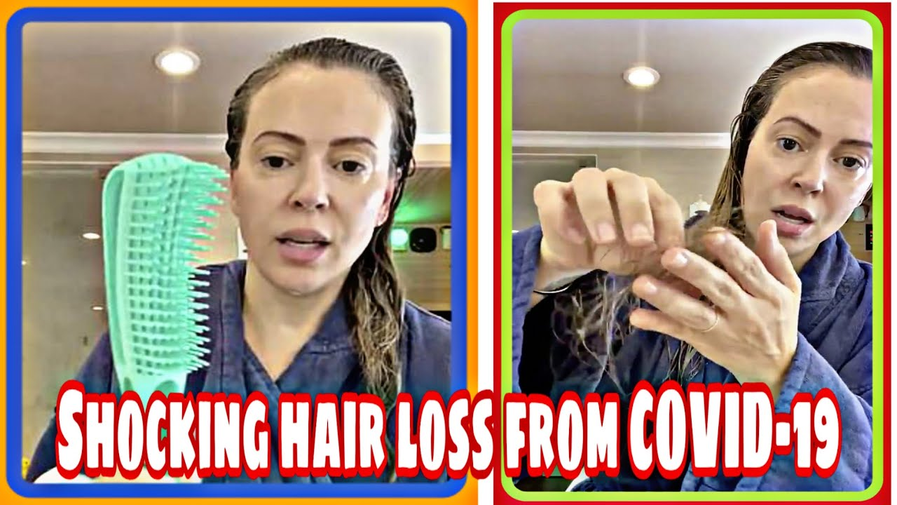 Alyssa Milano shows off shocking hair loss from COVID-19