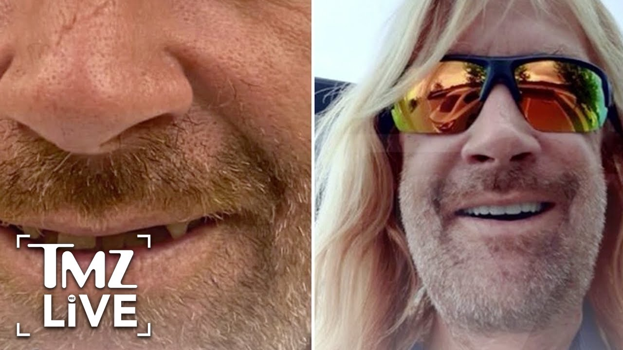 'Tiger King' Zookeeper Erik Cowie Gets New Teeth | TMZ Live