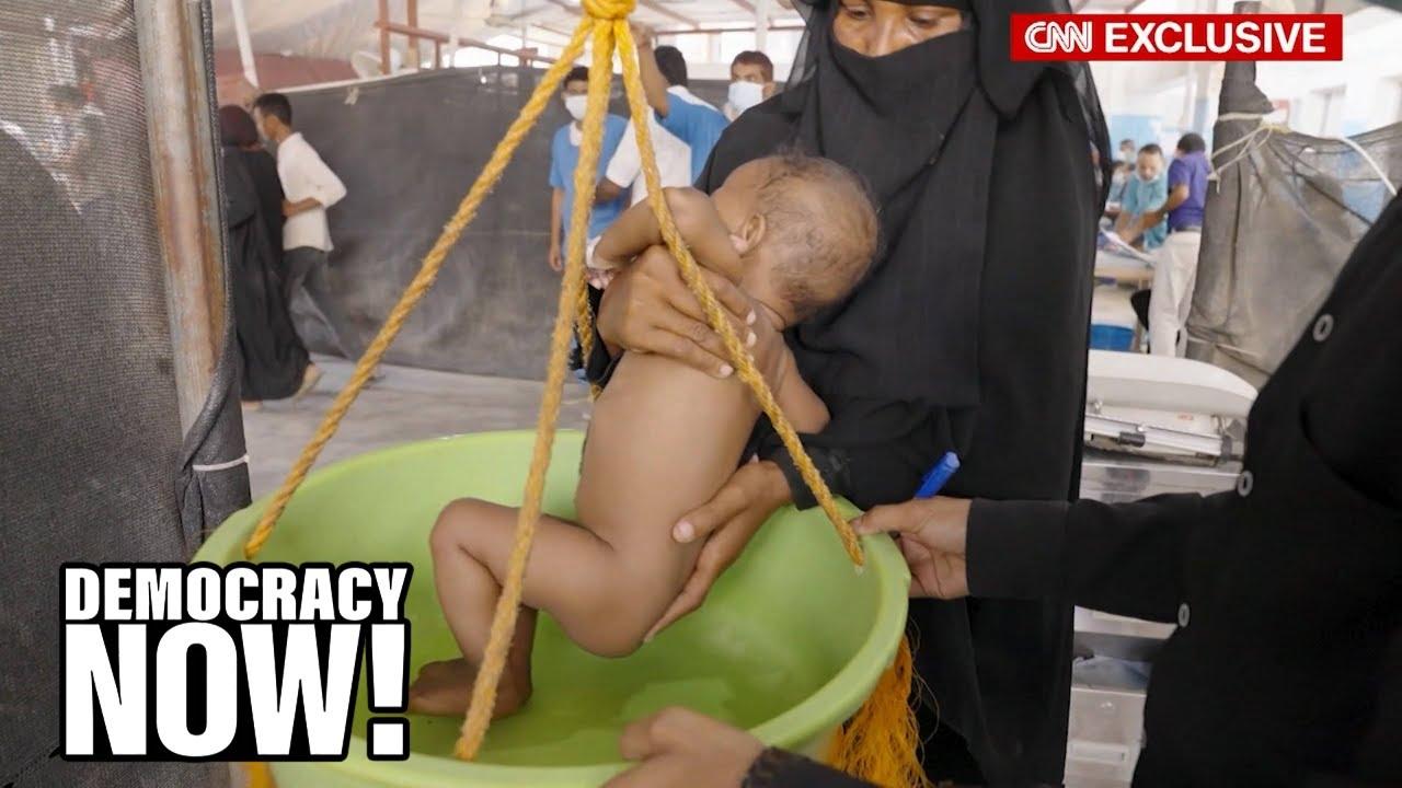 """Hell on Earth"": Yemeni Children Starve to Death as U.S.-Backed Saudi Blockade Devastates Nation"