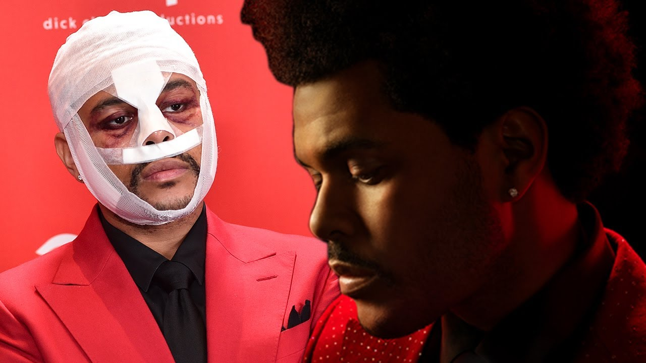 The Weeknd REVEALS Meaning Of Face Transformation & Bandages Ahead Of Superbowl!